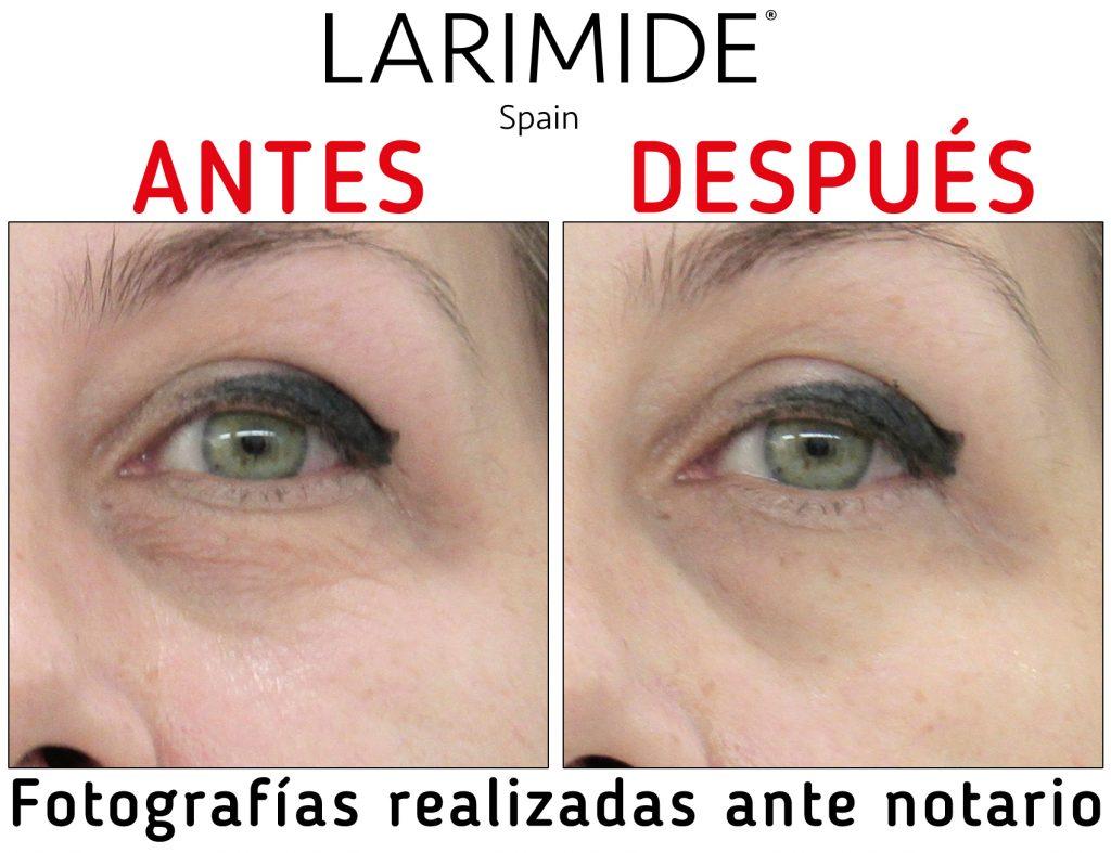 larimide-ion-fiz-atelier-alicante